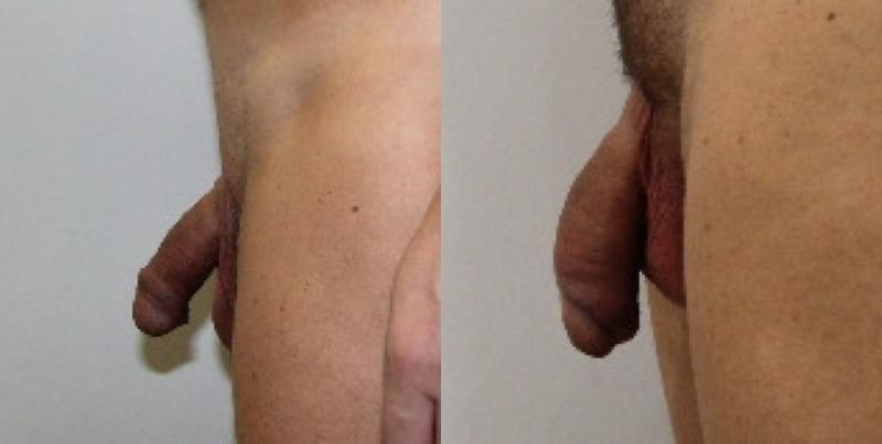 Bel pene